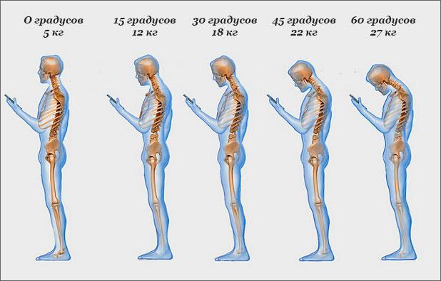 Влияние смартфона на позвоночник