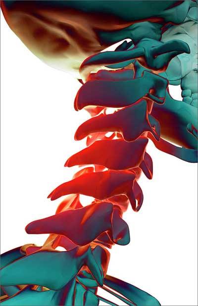 Болезни спины (часть 2). Психосоматика  ОСТЕОХОНДРОЗА