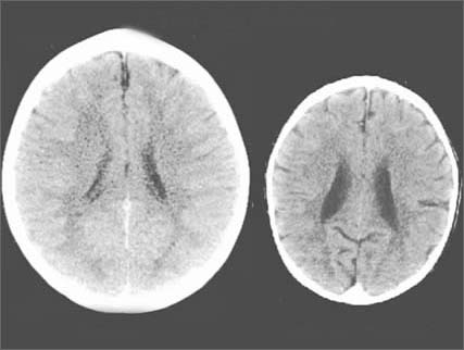 Зависимость развития мозга ребенка от отношения матери