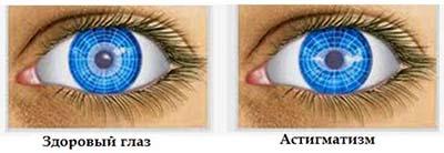 Рисунок глаз больного астигматизмом